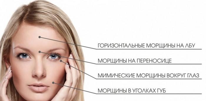 типы морщин на лице