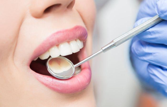 проверка зубов у стоматолога