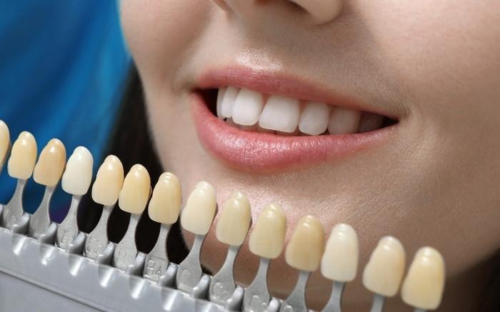 тона зубной эмали