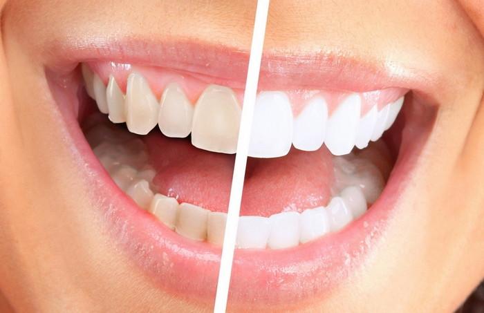 потемнение эмали зубов
