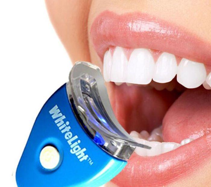 приборы отбеливания зубов в домашних условиях